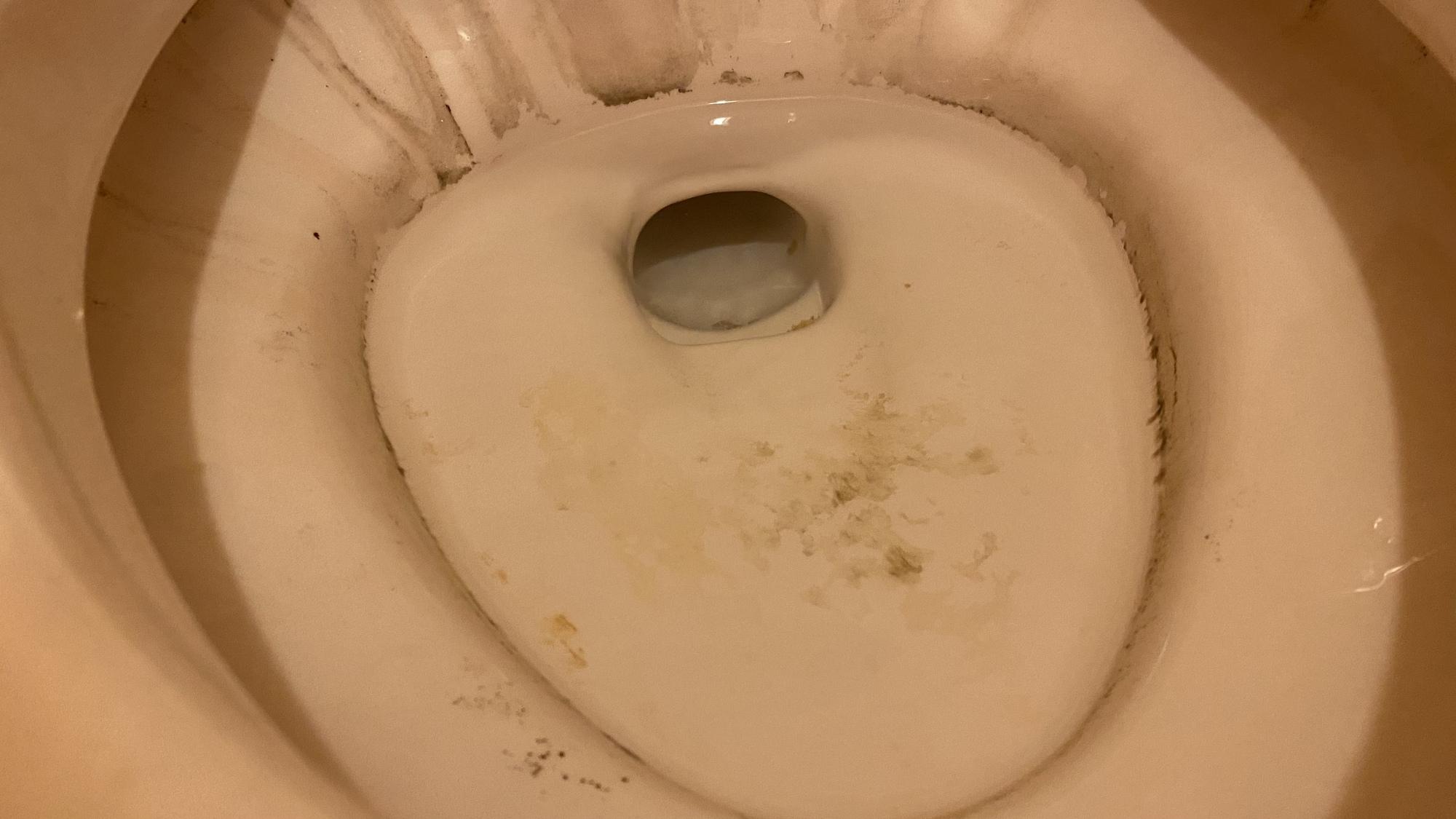 2・トイレの汚れ「黒ずみ」